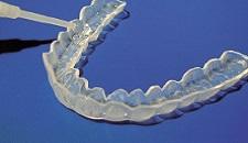 nuovi arrivi prezzo interessante ultimo design Sbiancamento dentale - Dr. Andrea Piccinini