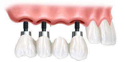 implantologiadentale